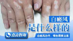 白癜风常见的症状是什么