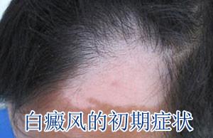 白癜风的早期症状有哪些